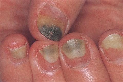 Toenail infection & fingernail infection | Raising ...